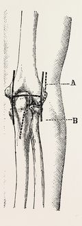 excision, medical equipment, surgical instrument, history of medicine