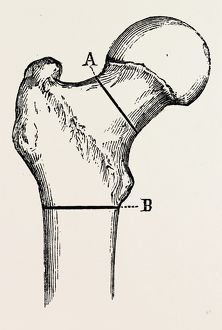 osteotomy, medical equipment, surgical instrument, history of medicine